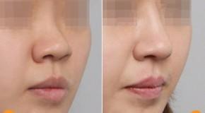 Nâng mũi tẹt thành sống mũi cao tự nhiên