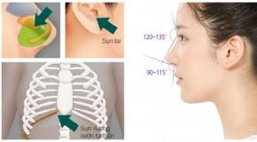 Các cách nâng mũi phổ biến nhất hiện nay