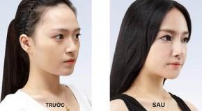 Làm sao để biết thẩm mỹ mũi ở đâu đẹp?