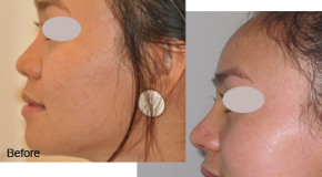Thế nào là nâng mũi bằng sụn nhân tạo?