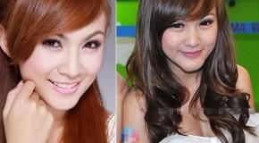 Những khuôn mặt kém xinh sau phẫu thuật của Sao Việt