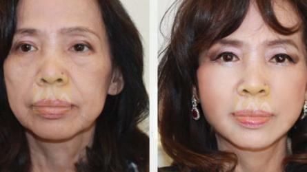 Căng da mặt bằng chỉ – trẻ hóa 15 tuổi !